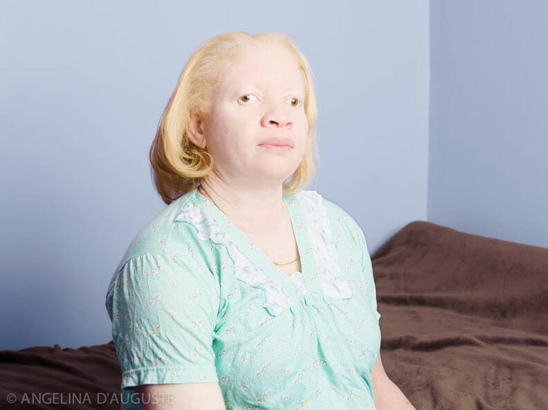 Portraits of albinism by Gustavo Lacerda