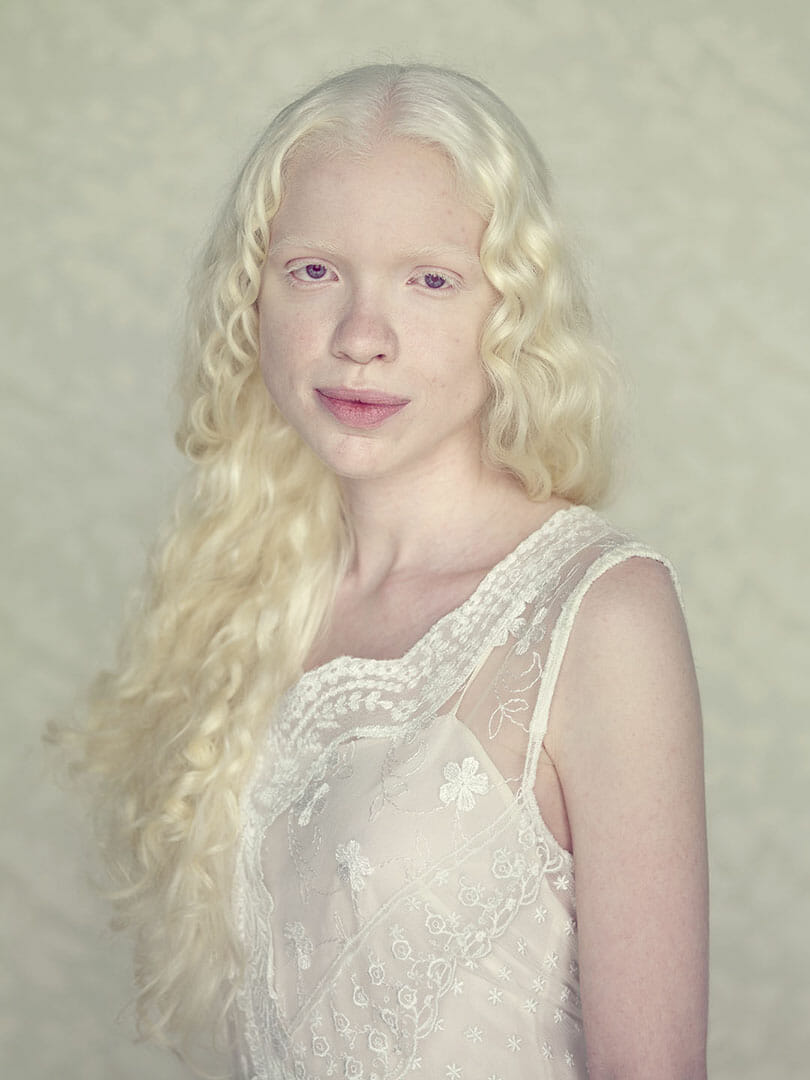 Portraits of albinism by Angelina d'Auguste