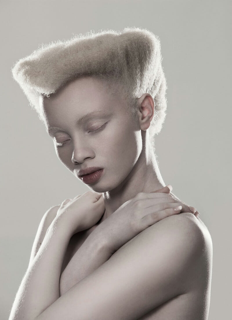 Portraits of albinism by Justin Dingwall