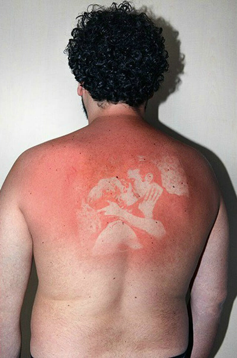 UV sunburn photos from the Illustrated People series by Thomas Mailaender